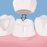 θήκη δοντιού πορσελάνης ολοκεραμικές γλυφάδα