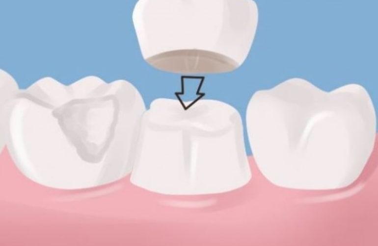 θήκες δοντιών πορσελάνης ολοκεραμικές