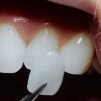 όψεις πορσελάνης οδοντίατρος γλυφάδα