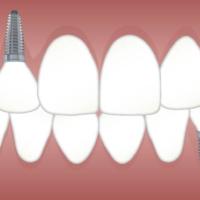 Εμφυτεύματα Δοντιών Γλυφάδα