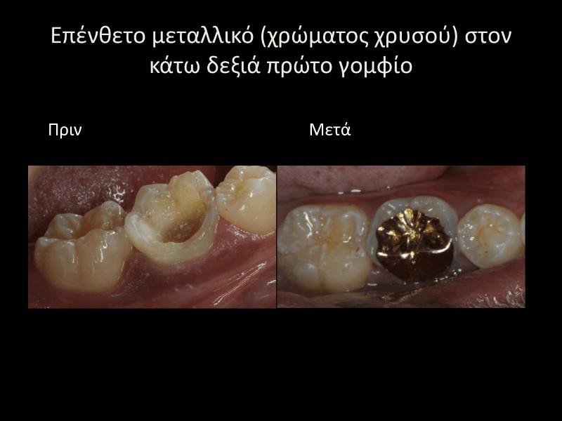Μεταλλικό επένθετο πριν και μετά γλυφάδα