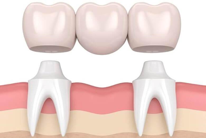 Γέφυρα δοντιών Γλυφάδα