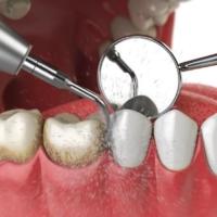 καθαρισμός δοντιών γλυφάδα