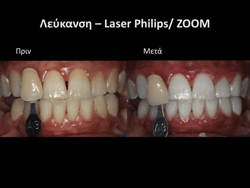 Λέυκανση δοντιών με λειζερ πριν και μετά γλυφάδα