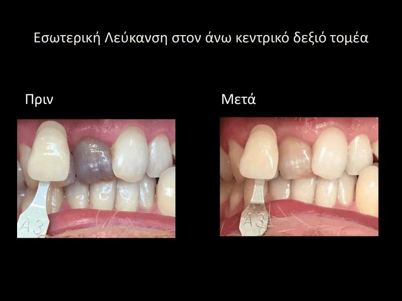 εσωτερική λευκανση δοντιών πριν και μετά γλυφάδα