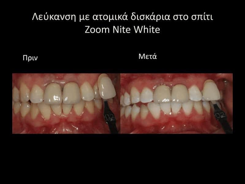 Λευκανση δοντιών με μασελάκια πριν και μετά γλυφάδα