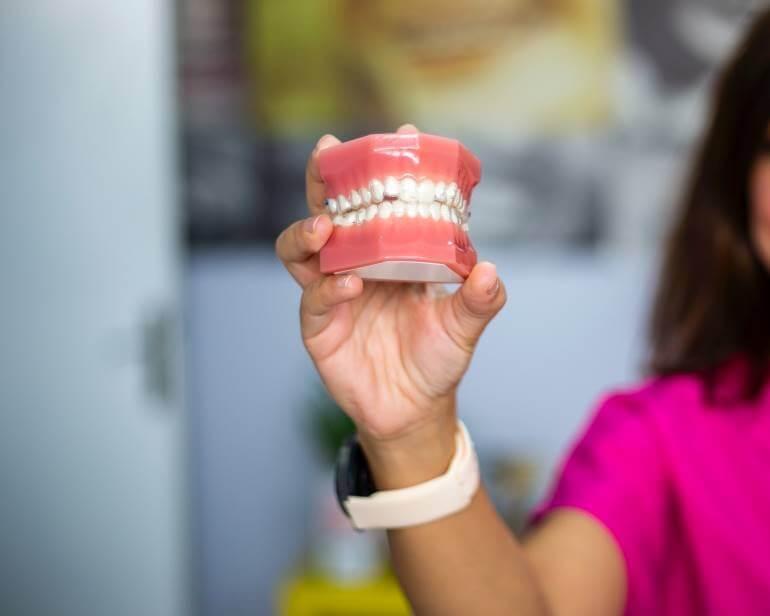 Οδοντοστοιχία Μασέλα Γλυφάδα