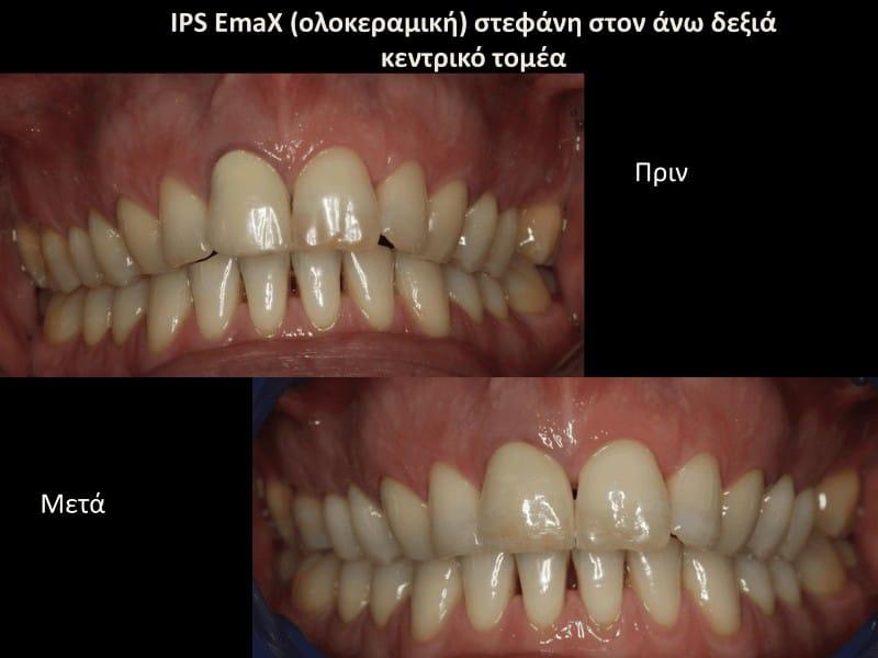 Ολοκεραμική θήκη δοντιού - στεφάνη πριν και μετά γλυφάδα