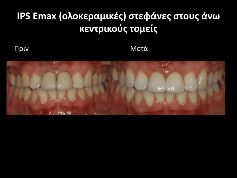 ολοκεραμικη θήκη δοντιού πριν και μετά γλυφάδα