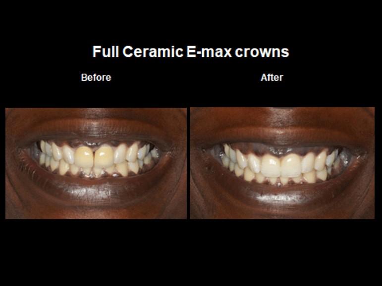 θήκη δοντιού πρίν και μετά (ολοκεραμική)