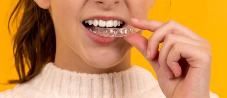 Invisalign – Οι διαφανείς νάρθηκες για ίσια δόντια