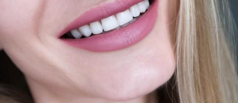 Πέτρα στα δόντια – Συνέπειες και αντιμετώπιση